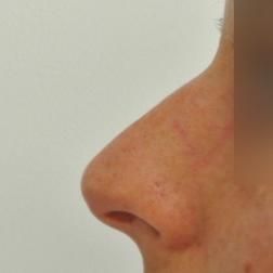 Chirurgia plastica viso, intervento di rinoplastica parziale, caso 217 - Prima