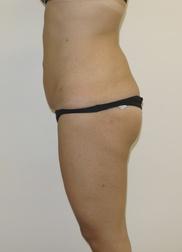 Chirurgia plastica gambe e glutei, intervento di vibroliposcultura - gambe e glutei, caso 220 - Dopo