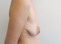 Chirurgia plastica seno, intervento di mastopessi con protesi, caso 225 - Prima