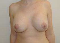 Chirurgia plastica seno, intervento di mastopessi con protesi, caso 224 - Dopo