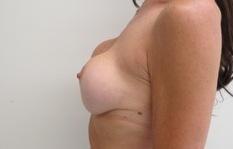 Chirurgia plastica seno, intervento di sostituzione protesi, caso 227 - Prima