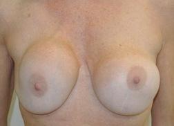 Chirurgia plastica seno, intervento di sostituzione protesi, caso 226 - Prima