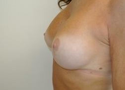 Chirurgia plastica seno, intervento di sostituzione protesi, caso 227 - Dopo