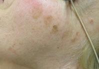 Chirurgia plastica viso, intervento di macchie viso, caso 230 - Prima