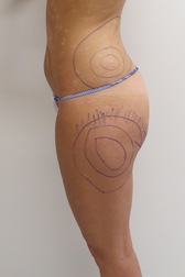 Chirurgia plastica addome, intervento di vibroliposcultura - addome, caso 233 - Prima