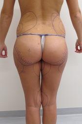 Chirurgia plastica gambe e glutei, intervento di vibroliposcultura - gambe e glutei, caso 235 - Prima