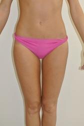 Chirurgia plastica addome, intervento di vibroliposcultura - addome, caso 232 - Dopo