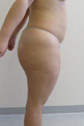 Chirurgia plastica gambe e glutei, intervento di vibroliposcultura - gambe e glutei, caso 242 - Prima