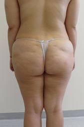 Chirurgia plastica gambe e glutei, intervento di vibroliposcultura - gambe e glutei, caso 243 - Prima