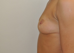 Chirurgia plastica seno, intervento di mastoplastica additiva, caso 244 - Prima