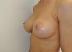 Chirurgia plastica seno, intervento di mastoplastica additiva, caso 244 - Dopo
