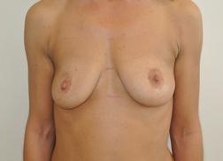 Chirurgia plastica seno, intervento di mastoplastica additiva, caso 245 - Prima