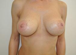 Chirurgia plastica seno, intervento di mastoplastica additiva, caso 245 - Dopo
