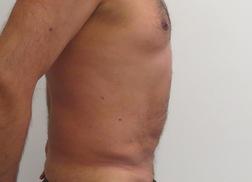 Chirurgia plastica addome, intervento di vibroliposcultura - addome, caso 236 - Dopo