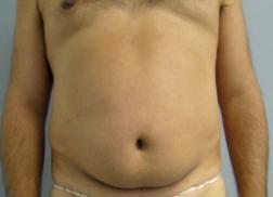Chirurgia plastica addome, intervento di vibroliposcultura - addome, caso 237 - Prima