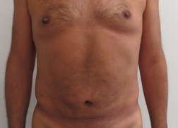 Chirurgia plastica addome, intervento di vibroliposcultura - addome, caso 237 - Dopo