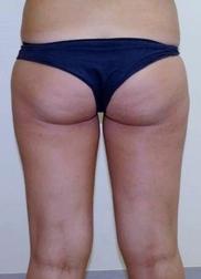 Chirurgia plastica addome, intervento di vibroliposcultura - addome, caso 197 - Prima