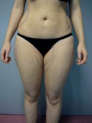 Chirurgia plastica gambe e glutei, intervento di vibroliposcultura - gambe e glutei, caso 246 - Prima