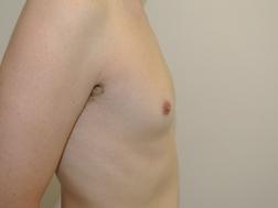 Chirurgia plastica seno, intervento di ginecomastia, caso 251 - Prima