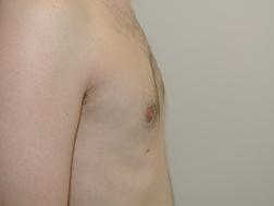 Chirurgia plastica seno, intervento di ginecomastia, caso 251 - Dopo