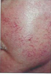 Chirurgia plastica viso, intervento di laser, caso 253 - Prima