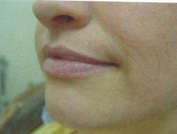 Chirurgia plastica viso, intervento di laser, caso 254 - Dopo