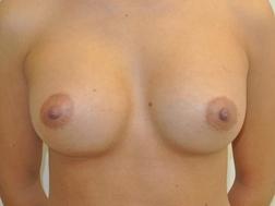 Chirurgia plastica seno, intervento di mastoplastica additiva, caso 255 - Dopo
