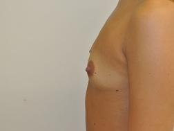 Chirurgia plastica seno, intervento di mastoplastica additiva, caso 256 - Prima