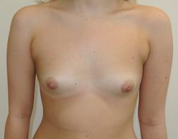 Chirurgia plastica seno, intervento di mastoplastica additiva, caso 257 - Prima