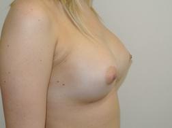 Chirurgia plastica seno, intervento di mastoplastica additiva, caso 258 - Dopo
