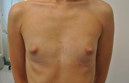 Chirurgia plastica seno, intervento di mastoplastica additiva, caso 260 - Prima
