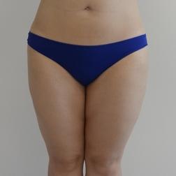 Chirurgia plastica gambe e glutei, intervento di vibroliposcultura - gambe e glutei, caso 263 - Dopo