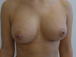 Chirurgia plastica seno, intervento di lipofilling mastoplastica additiva, caso 267 - Dopo