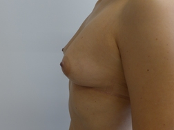 Chirurgia plastica seno, intervento di lipofilling mastoplastica additiva, caso 268 - Prima