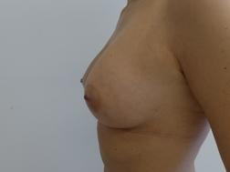 Chirurgia plastica seno, intervento di lipofilling mastoplastica additiva, caso 268 - Dopo