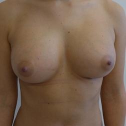 Chirurgia plastica seno, intervento di lipofilling mastoplastica additiva, caso 270 - Dopo
