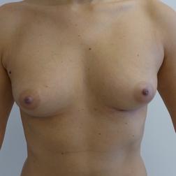 Chirurgia plastica seno, intervento di lipofilling mastoplastica additiva, caso 270 - Prima