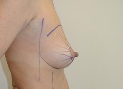 Chirurgia plastica seno, intervento di lipofilling mastoplastica additiva, caso 271 - Prima