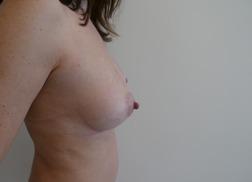 Chirurgia plastica seno, intervento di lipofilling mastoplastica additiva, caso 271 - Dopo