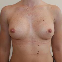 Chirurgia plastica seno, intervento di mastoplastica additiva, caso 272 - Dopo