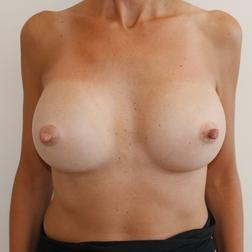 Chirurgia plastica seno, intervento di mastoplastica additiva, caso 273 - Dopo