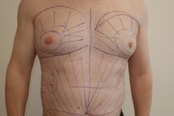 Chirurgia plastica seno, intervento di ginecomastia, caso 274 - Prima