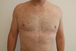 Chirurgia plastica seno, intervento di ginecomastia, caso 274 - Dopo
