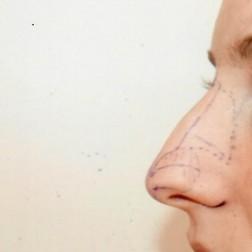 Chirurgia plastica viso, intervento di rinoplastica, caso 278 - Prima