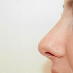 Chirurgia plastica viso, intervento di rinoplastica, caso 278 - Dopo