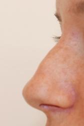 Chirurgia plastica viso, intervento di rinoplastica, caso 280 - Prima