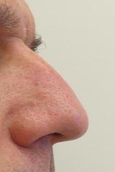 Chirurgia plastica viso, intervento di rinoplastica, caso 281 - Prima