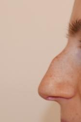 Chirurgia plastica viso, intervento di rinoplastica, caso 282 - Prima