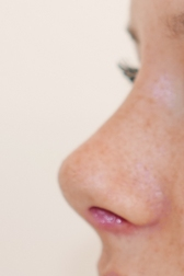 Chirurgia plastica viso, intervento di rinoplastica, caso 280 - Dopo