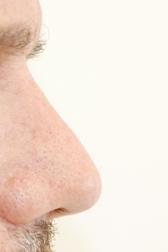 Chirurgia plastica viso, intervento di rinoplastica, caso 281 - Dopo